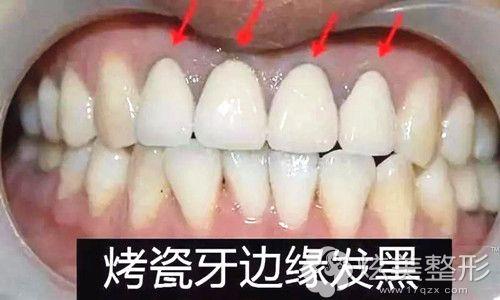 烤瓷牙很容易发黑