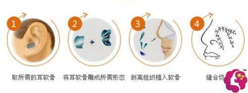 耳软骨隆鼻过程