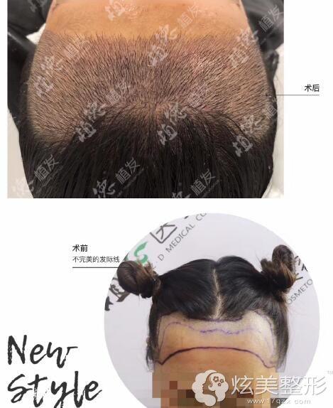 术前不美的发际线刚做完毛发移植术后一周