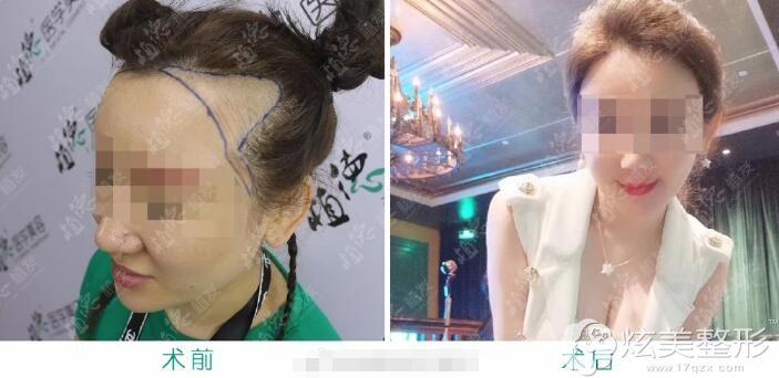 发际线不好看移植后经过脱发期术后一年的样子