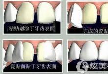 树脂贴面和瓷贴面哪个好?为啥说千万别做树脂牙齿贴面