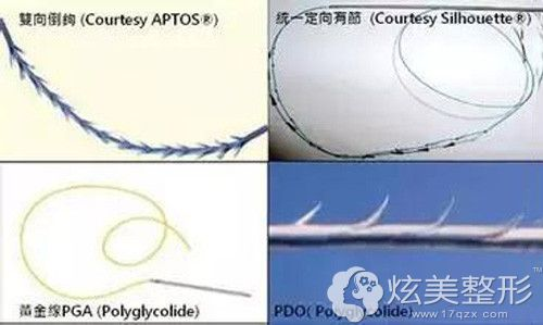 埋线采用的线材上都有自带的倒钩