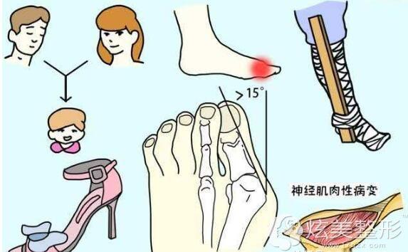 大脚骨,俗称拇外翻