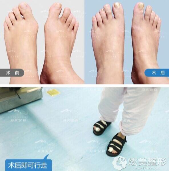 马桂文大脚骨手术价格基本上在5万元起