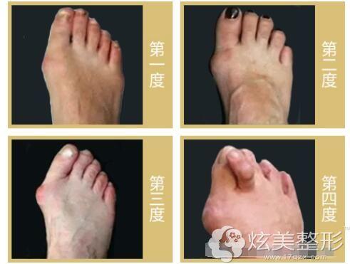 马医生讲还是要看大脚骨的轻重程度来定是否需要手术