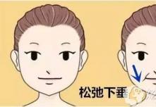 中下面部下垂做小切口除皱后脸会变形、老的更快是真的吗