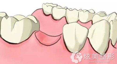 牙齿缺失想要做种植牙