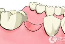 深圳牙科收费价目表公开后,还想问5千多的种植牙能用吗