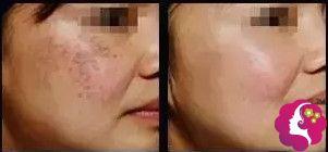 激光祛斑术后没有反黑情况