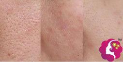 皮肤毛孔粗大