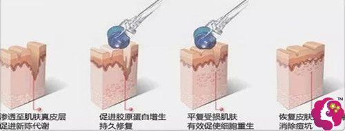 微针改善毛孔粗大