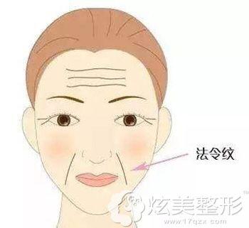 面部衰老出现的皱纹
