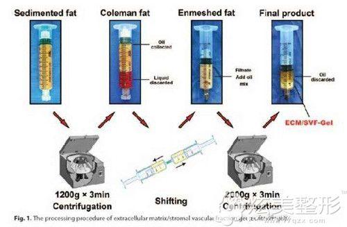 提取脂肪胶的手术原理