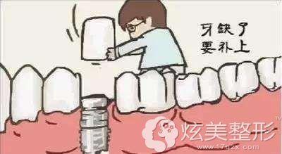 牙齿缺失需要做种植牙来改善