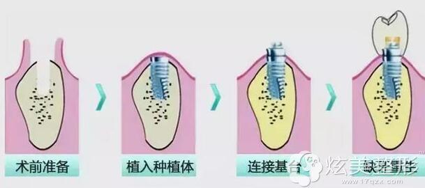 种植牙的手术过程图