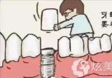 种植过牙的人亲身经历来说到底是种植牙疼还是拔牙疼