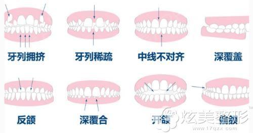 适合做牙齿矫正的几种类型