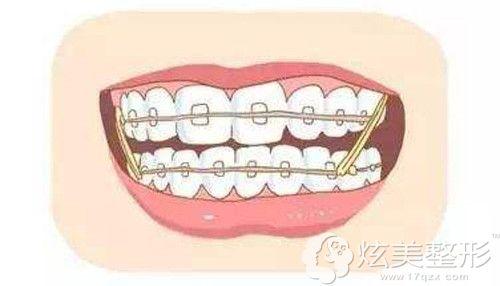 牙齿矫正的手术原理