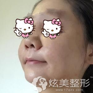 下颌缘吸脂术后5天脸部肿胀明显