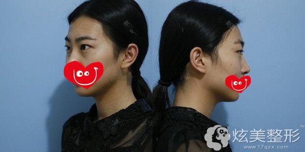 术前额头有些扁平,太阳穴也有些凹陷