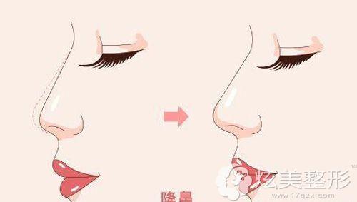 做完手术后鼻尖出现了明显增高情况