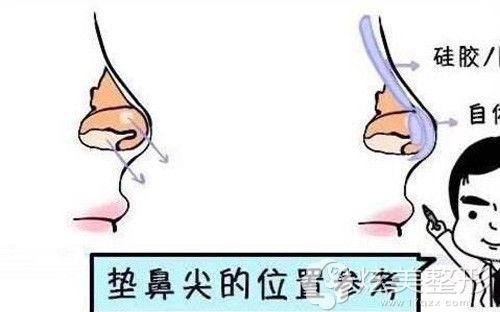 耳软骨垫鼻尖的手术原理