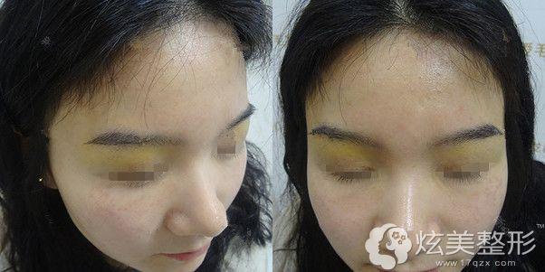 术后4天,眉眼部位有些发黄