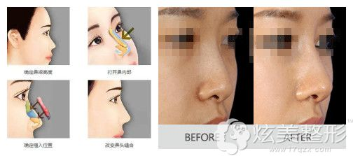 耳软骨隆鼻效果图