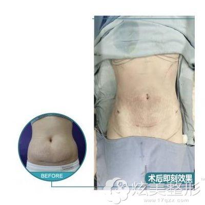 腰腹部吸脂前后对比案例