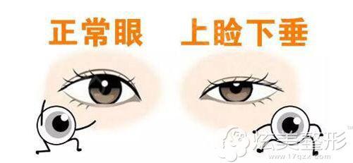 正常眼睛和上睑下垂的眼睛区别