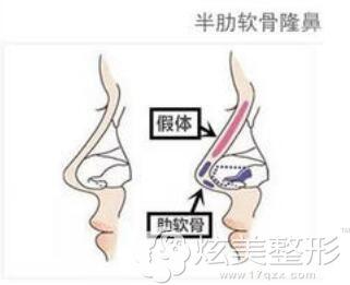 半肋软骨隆鼻的原理