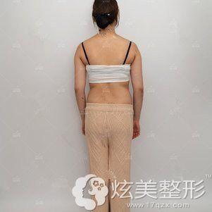 术前腰腹和大腿粗壮