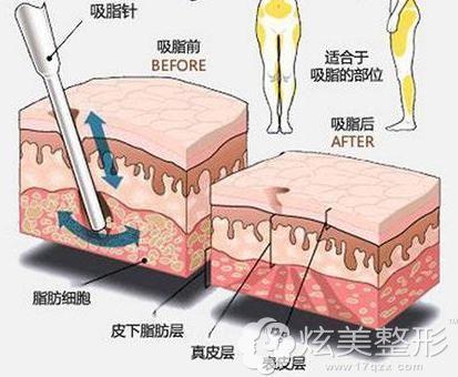 大腿吸脂和腰腹吸脂手术过程
