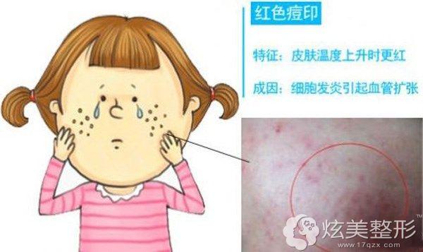 红色痘印形成的原因