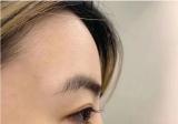 打call成都纽莱茵,韩国欧巴给我做膨体鼻修复+双眼皮修复