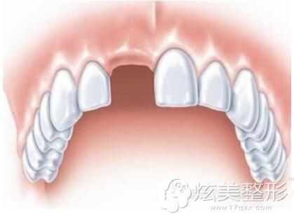门牙缺失的图片