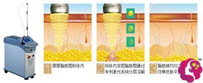激光溶脂溶解过量脂肪