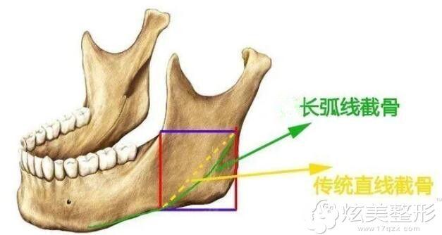 下颌骨长曲线截骨示意图