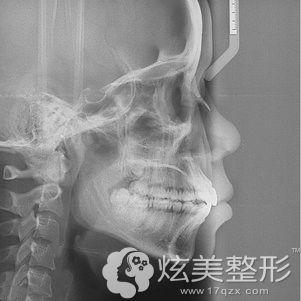 拍片了解牙齿属于牙性