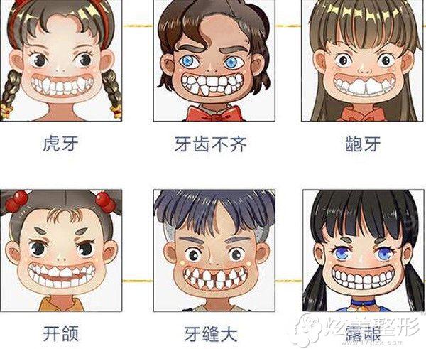 需要做牙齿矫正的几种类型