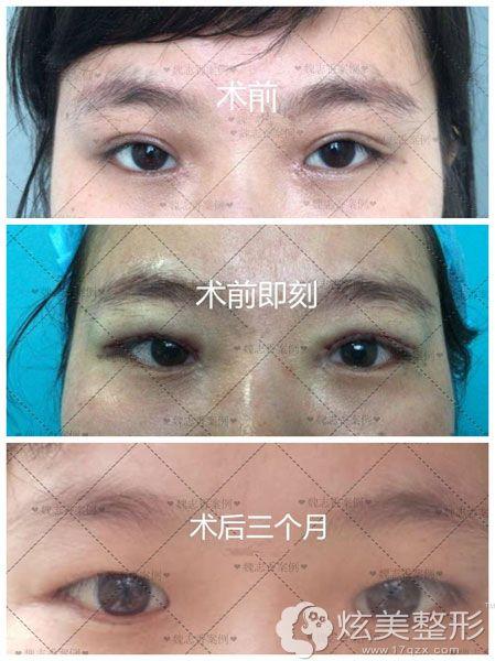 魏志香做双眼皮改单眼皮手术效果图