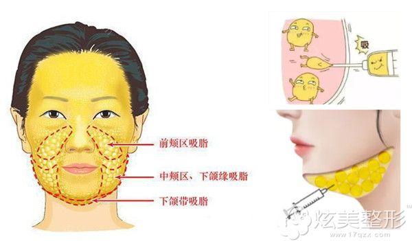 下颌缘抽脂手术