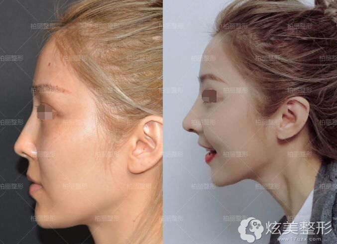 立秀膨体垫鼻梁+耳软骨鼻中垫鼻头的网红风隆鼻案例