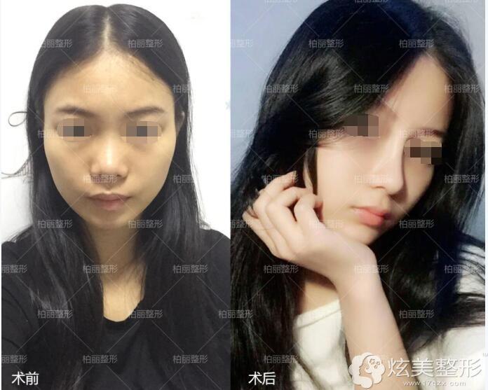 精致小翘鼻案例:威宁硅胶假体+鼻中隔软骨隆鼻