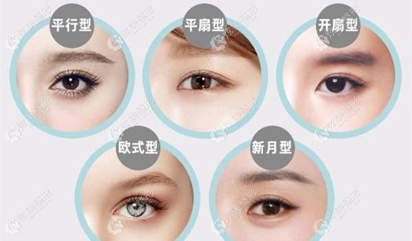 5种双眼皮类型