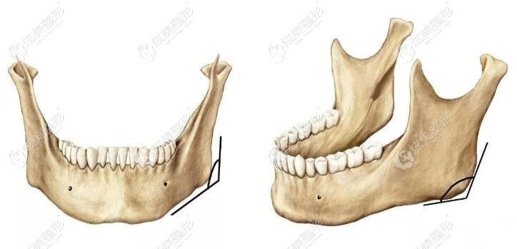 磨腮削骨的手术过程