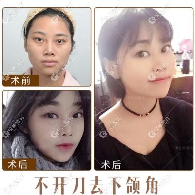 在北京艺美做的不开刀去下颌角改善方脸