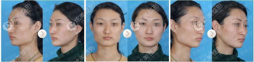 找到黄寅守医生花64000元做的面部轮廓整形