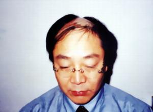 前额头发突出,两边少_额头两边头发少怎么办,毛发移植哪里好 - 脱发治疗 - 炫美网