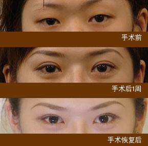 韩式双眼皮对比_韩式双眼皮前后对比,韩式双眼皮图片 - 韩式双眼皮 - 炫美网